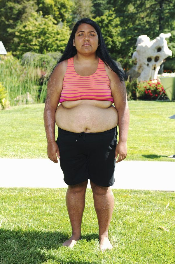 Tucson Medical Weight Loss Cost