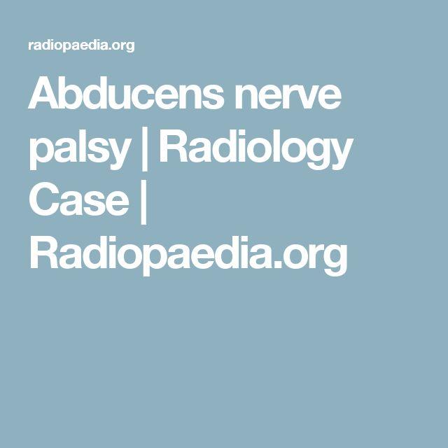 Abducens nerve palsy | Radiology Case | Radiopaedia.org
