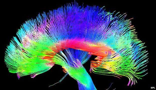 Artists 'have structurally different brains' | BBC News