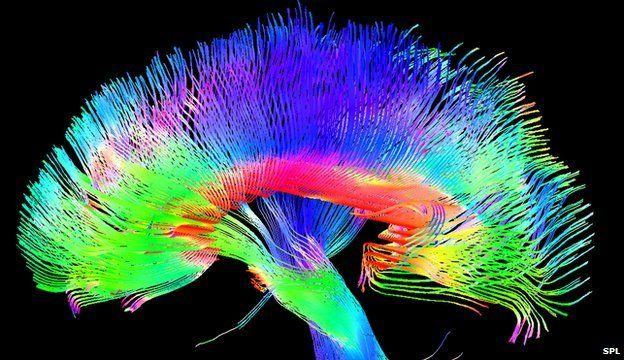 Neuroscannings...