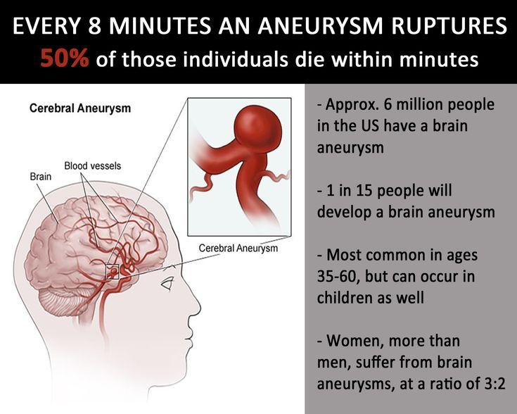 #brainaneuyrsm #awareness