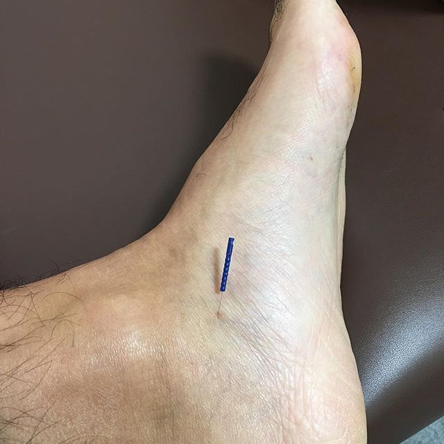 2016/11/07 17:35:36 masa.shimada 首の付け根の痛みや張りに。 #acupuncture #treatment #neck #pain #stiffneck #首こり #痛み #針 #治療 #鍼灸 #葛飾区 #金町 #金町整体 #東京 #tokyo #katsushika #kanamachi #金町治療院