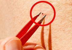 Como eliminar pulgas e carrapatos naturalmente?