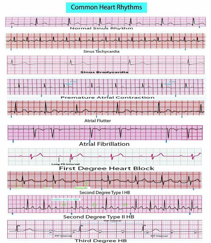 Pin by Kelsey Bush on Cardiology Ekg interpretation, Ekg