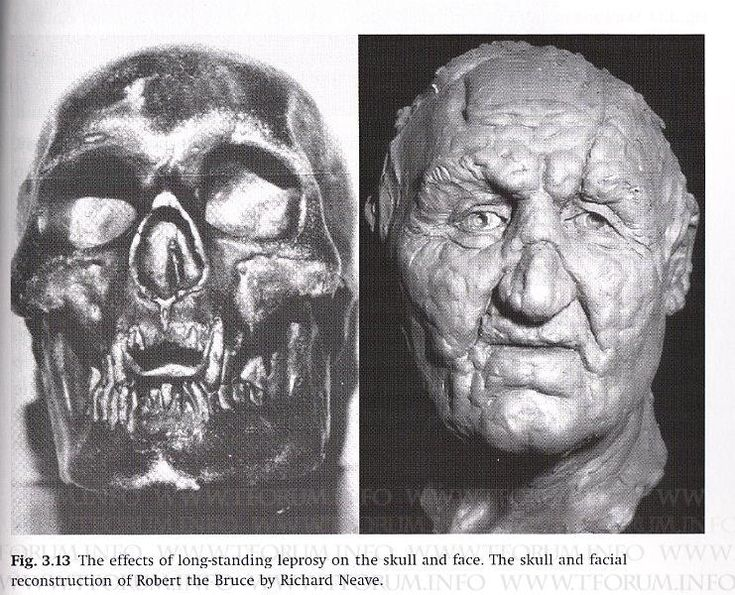Face reconstruction of King; Robert The Bruce with the results of leoprosy