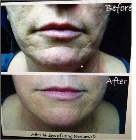 Nerium AD changes lives everyday!  14 days later, what do you think? www.hollylove.nerium.com