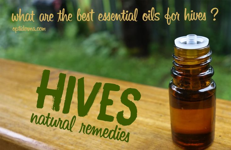 Essential Oils for Hives - Learn about the best natural remedies for hives and how to use some essential oils, such as lavender, chamomile or tea tree. Dilute a few drops in coconut oil or take an epsom salt bath, it will help soothe the symptoms. Find lots of useful tips here: http://www.optiderma.com/skin-conditions/urticaria-hives-natural-remedies/