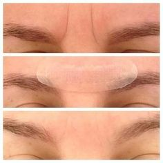 Introducing Rodan and Fields Acute Care!! There is NOTHING else like it!! Fill a wrinkle as you sleep without a needle or pain! Those are results after 24 hours! You can only get this product from ME ! Become a PC Today and On October 27th (while supplies last) get this product at MY PRICE! Try it risk free for 60 days! amandaprice.myrandf.com