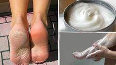 Aspirin ve limonla topuk çatlağı tedavisi nasıl yapılır:Bu yapılışı oldukça kolay olan aspirin limon karışımı ile topuk çatlakları yok olacak, ayaklarınız bebek gibi yumuşak olac