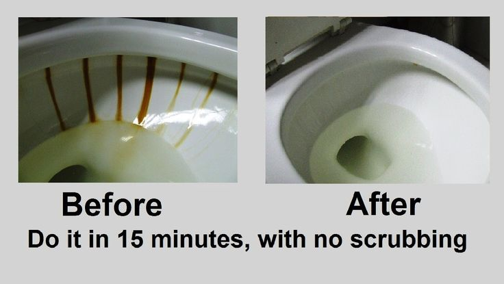 Toilet bowl iron stain removal. Do it in 15 minutes, no scrubbing!