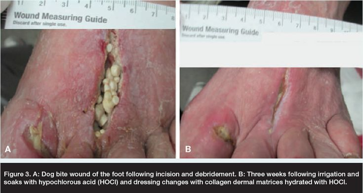 Dog bite wound following incision and debridement. | Wound ...