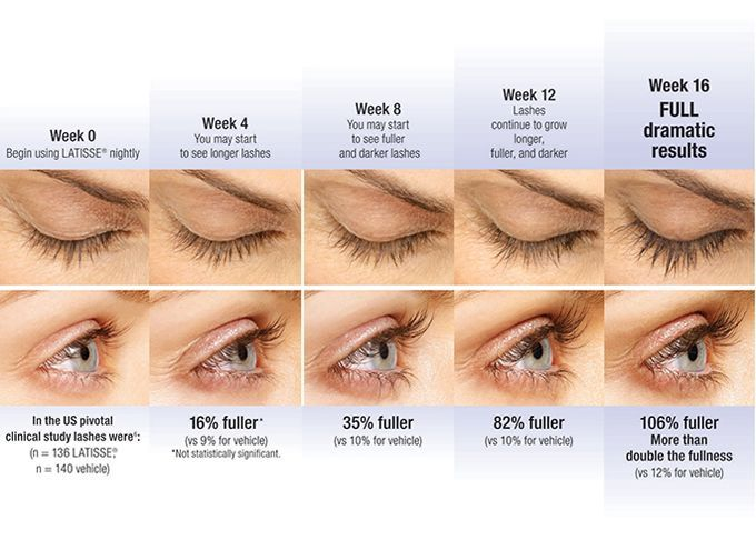 Spaatspringridge Medspa Wyomissing Latisse Eyelashes Call For