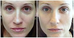 Restylane for Rested Eyes: tear trough injections for improving dark circles and under-eye puffiness