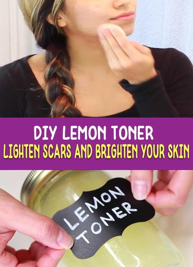 Lemon Toner for Brightening Skin – This toner leav…