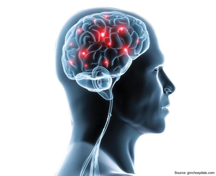 Top Neurology and Neurosurgery centre in Pune  Trust in Jehangir Hospital when it comes to the most complex organ in the human body – The Brain; made up of more than 100 billion nerves that communicate in trillions of connections called synapses, any minor or major difficulties related to the brain often affects the Spine http://www.jehangirhospital.com/centres-of-excellence/neurology-and-neurosurgery-pune