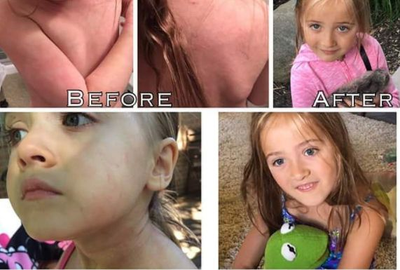 "SVK, 5, started Aron Regimen a year ago. She is now in remission and hasn't had to use any medication for the last 9 months. ""These aren't even the worst of the pictures of her eczema, she was truly suffering non stop and within one week it was a significant change, within one month, it was almost gone! Now, she doesn't even have any reactions to anything that used to torment her, he saved her from so much pain and suffering, I cannot thank Dr Aron enough!"""