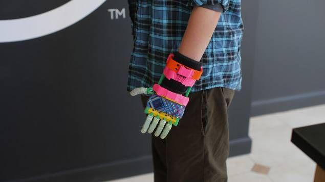 Maxence, premier en France à avoir une prothèse de main imprimée en 3D.