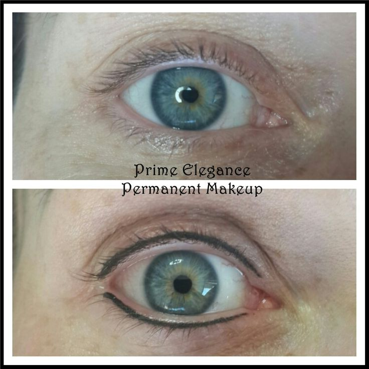 Permanent eyeliner immediately after first procedure. The lines and colour will appear darker and more prominent than what is expected at the final outcome. With healing, the colour and lines will fade into a softer, natural looking eyeliner. At the touchup, we can decide if we should go darker and thicker