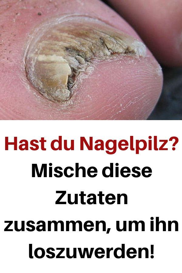 Hast du Nagelpilz? Mische diese Zutaten zusammen, um ihn loszuwerden! #loszuwerd… Elke Hantusch