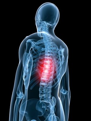 Mid Back Pain Relief middle back pain relief 225x300 How to Deal with Middle Back Pain ...