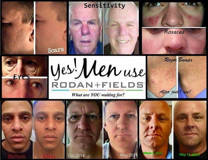 Anyone can use Rodan + Fields products! Learn how to get your products at a discount!