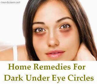 home remedies for dark circles 28 best images about cures for psoriasis on 28750