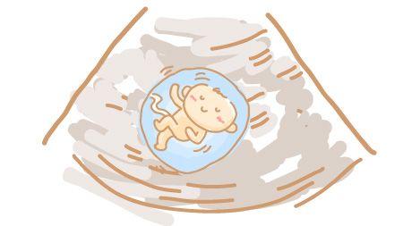 エコーを受けてる胎児のイラスト