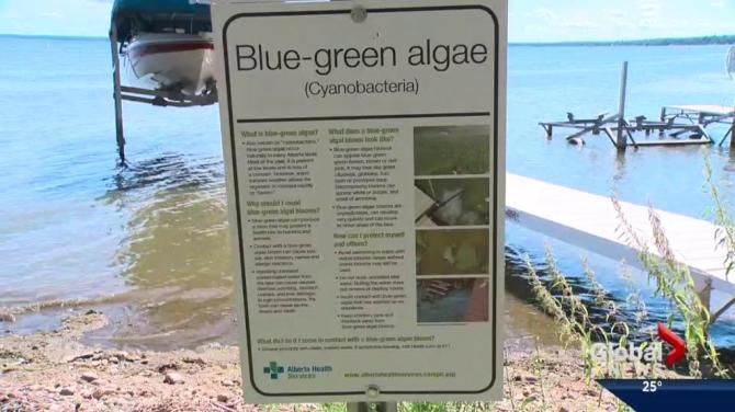 nice Canadian News - Blue-green algae advisory issued for Eagle Lake, Severn Creek Reservoir - Calgary #News in #Canada Check more at http://sherwoodparkweather.com/canadian-news-blue-green-algae-advisory-issued-for-eagle-lake-severn-creek-reservoir-calgary-news-in-canada/