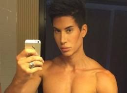 Human Ken Doll Justin Jedlica Risks Blindness To Become 100 Percent Plastic