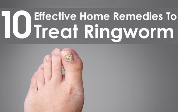 10 Effective Home Remedies To Treat Ringworm