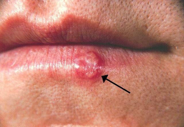 El herpes simple es una enfermedad viral altamente contagiosa que causa llagas dolorosas. Mira como puedes combatir el herpes labial con medicina natural.
