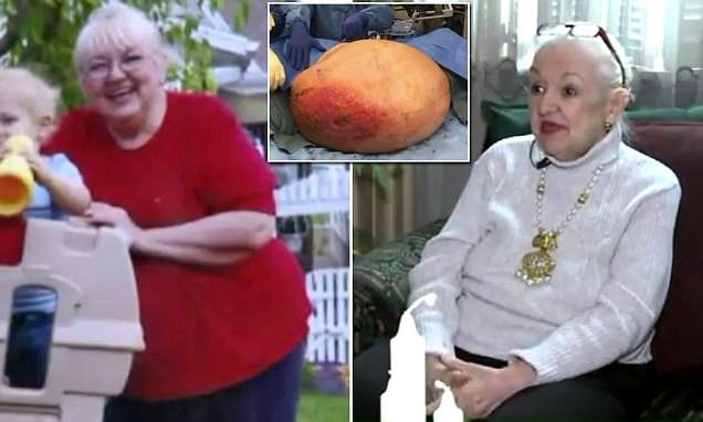 Mary Clancey, 71, from Saint Clair, Pennsylvania, always assumed she was destined to be overweight at 350 pounds. Then, doctors found a 140-pound tumor inside her ovaries.