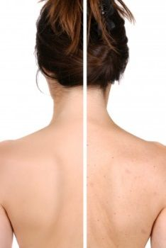 Home remedies for Back & Butt acne