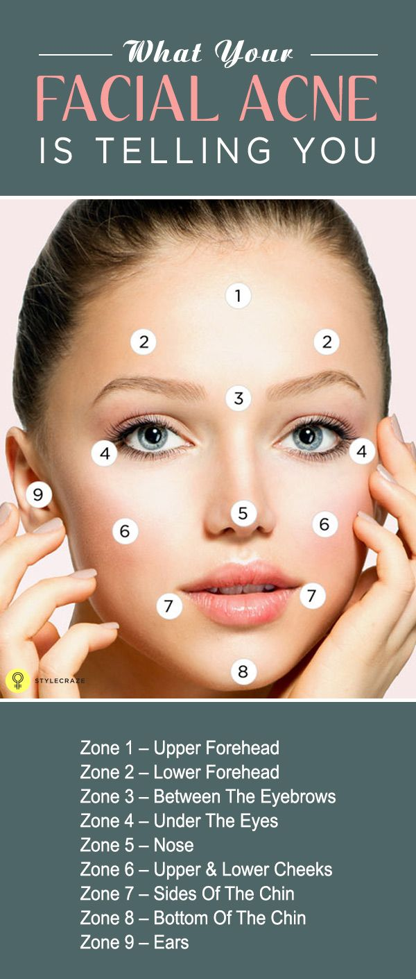 What Your Facial Acne Is Telling You