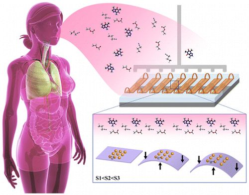 Medical researchers have developed a nanoparticle-based sensor, an 'electronic nose,' that can successfully discriminate between exhaled breath collected from control subjects and those with ovarian cancer, with data from a single sensor being sufficient to obtain 82% accuracy, irrespective of important confounding factors, such as tobacco consumption and comorbidities.