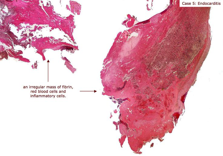 Microscopic - Acute endocarditis, with evidence of fibrin and inflammatory infiltration.