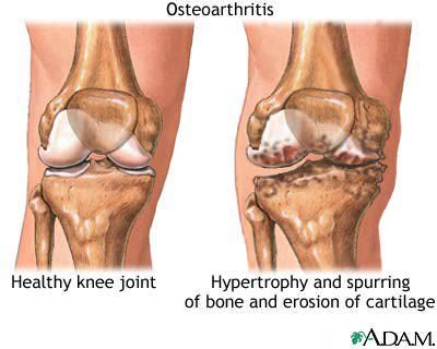 What are bone spurs?