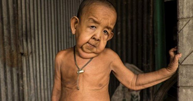 10 Extremely Distinctive Kids From Round The World