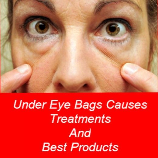 Under Eye Bags Treatments Causes And Best Cream Beauty Is Everything Pinterest Eyes