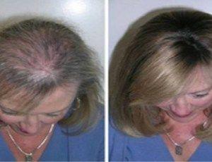 Óleo de rícino para fazer renascer cabelos, sobrancelhas e cílios