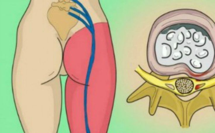 Si quelque chose exerce une pression sur le canal lombaire, cela peut entraîner desdouleurs dans certaines parties du nerf sciatique. Par exemple, une hernie disquale, une discopathie dégénérative, un spondylolisthesis, une sténose spinale ou toute autre anomalie des vertèbres peut exercer une pression sur ce nerf. La sciatique est caractérisée par une douleur aux jambes, …