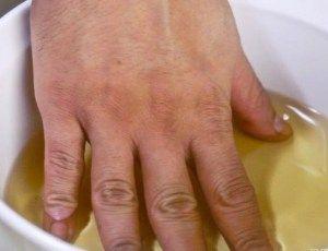 Remédio caseiro milagroso para curar a artrite e dor nas articulações! Melhora a tua saúde! - Ideal Receitas