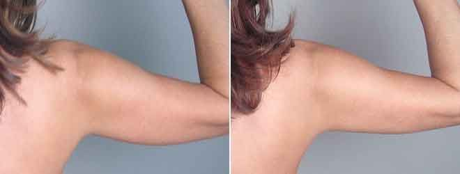 Upper arm liposuction 13 – Liposuction before and after – #arm #Liposuction #Upp…