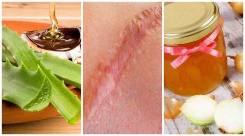 Las cicatrices son antiestéticas y afectan la belleza de la piel. Estas soluciones naturales son una buena opción para disminuir su aspecto.