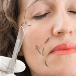 Learn more about the mini lift http://skintighteningsage.com/mini-face-lift-a-quick-and-convenient-beauty-hack/