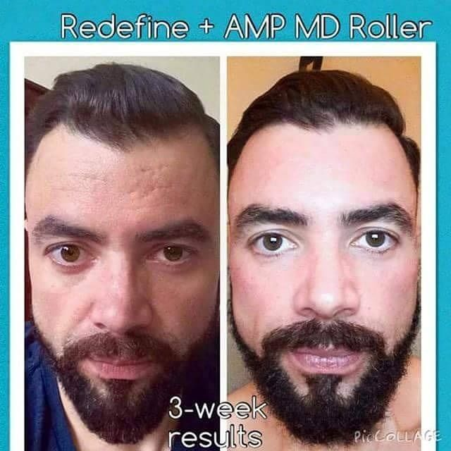 Men getting awesome results with Rodan and Fields redefine line! Amp MD Micro needling micro roller before and after