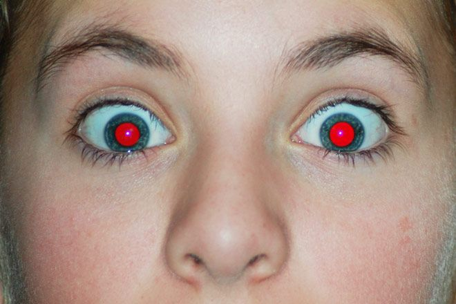 Visit Trend Eye Care Do you have vampire eyes in all your photos? How to prevent and fix red-eye. Schedule an Eye Exam