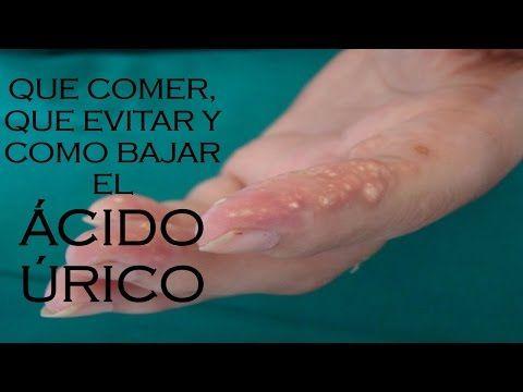 aliviar la gota zumba eliminar la gota wikipedia que alimentos consumir para el acido urico