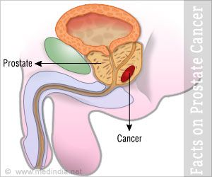 Prostate Cancer Facts and Figures