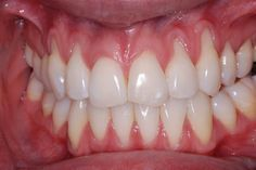 How to use home remedies to grow back receding gums? Receding gums, happens when the gum tissue around your teeth wear away and the gums appear to rec...